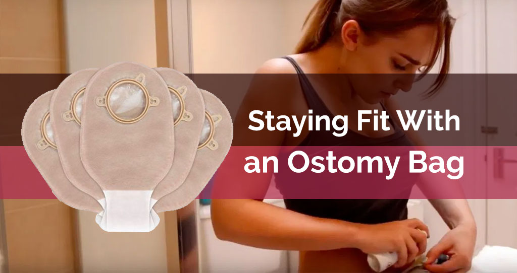 Staying Fit With an Ostomy Bag